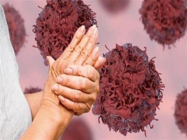 تغير شكل الأصابع مؤشر على الإصابة بهذا المرض الخطير
