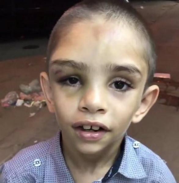 والده يجبره على التسول.. طفل سوري معنّف يثير استعطاف السعوديين