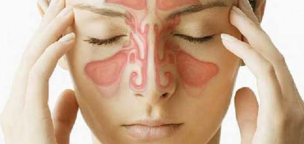 في 3 دقائق..علاج منزلي يخلصك من أعراض الجيوب الأنفية