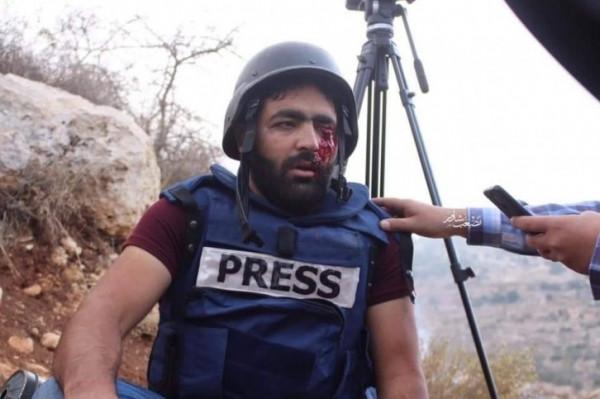 منتدى الإعلاميين الفلسطينيين يدين تعمد الاحتلال استهداف الزميل عمارنه وإفقاده عينه اليسرى