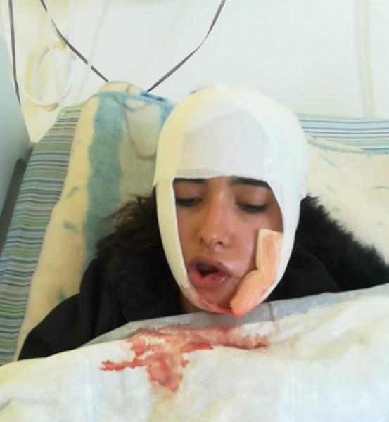 والدة الطالبة المصابة بقنبلة غاز إسرائيلية تٌناشد الرئيس لمعالجة ابنتها