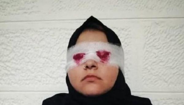 تفاصيل مروّعة جديدة عن مقتلع عيني زوجته بالأردن