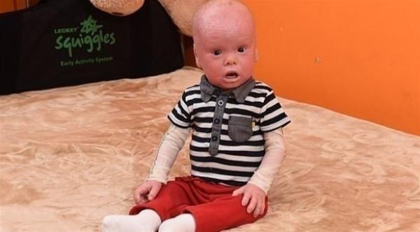 طفل يشبه الدمى بسبب حالة نادرة
