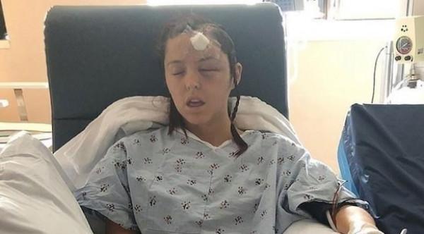 تخضع لجراحة مدتها 10 ساعات وهي مستيقظة