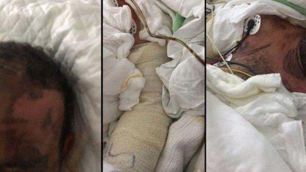شاهد: تفاصيل جديدة بواقعة إحراق سعودي بالأسيد على يد زوجته