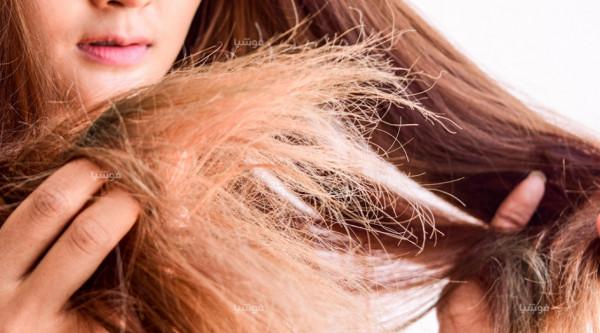 جفاف الشعر.. خمسة علاجات منزلية سريعة وسهلة