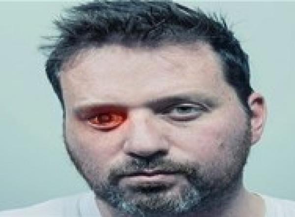 يفقد بصره في إحدى عينيه فيحولها إلى كاميرا للتصوير