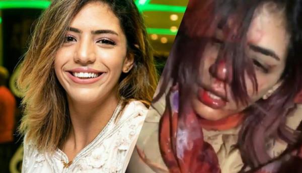 الاعتداء على مغنية راب مغربية حسناء.. والأخيرة تبكي ووجهها ينزف دماً