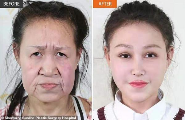 جراحة تعيد شباب مُراهقة صينية بعد إصابتها بمرض نادر جعلها عجوز