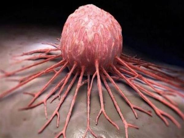 غير جرثومة المعدة.. فيروسات مصدر الإصابة بالأورام الخبيثة
