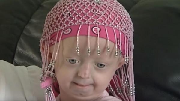 شيخوخة مبكرة لدى طفلة أوكرانية تؤدي لوفاتها