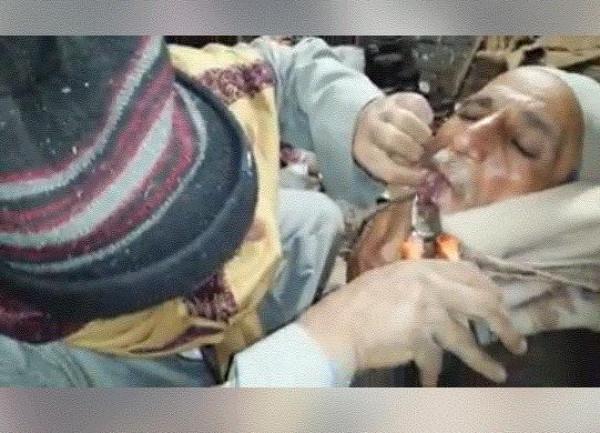 """بمشهد غريب وصادم.. رجل يخلع ضرس صديقه بـ""""الكماشة"""" بمصر"""