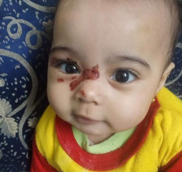 تعذيب الطفلة ساجدة يهز المجتمع المصري