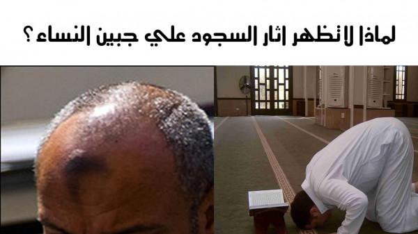 شاهد: لماذا لا تظهر علامة السجود على جبين المرأة؟