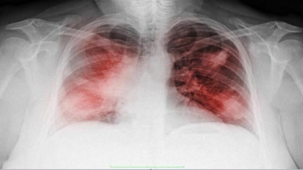 ثلاث علامات تحذيرية غير معتادة قد تكشف الإصابة بسرطان الرئة