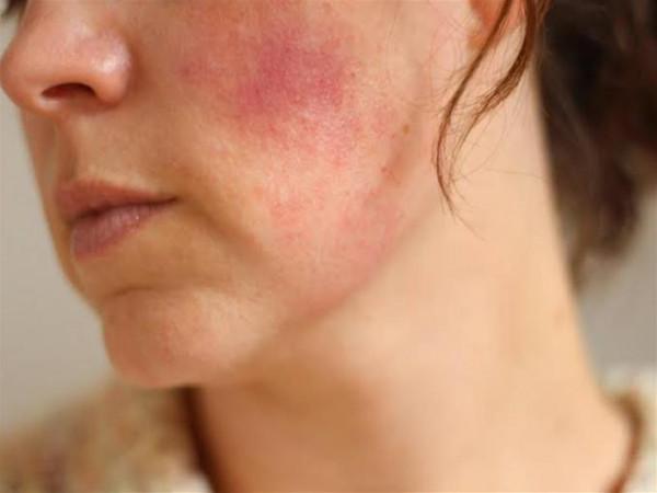 خمسة علاجات منزلية تخلصك من البقع الحمراء بالوجه