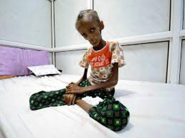 مسؤولة الشؤون الإنسانية في اليمن تُحذّر من خطر مجاعة جديد