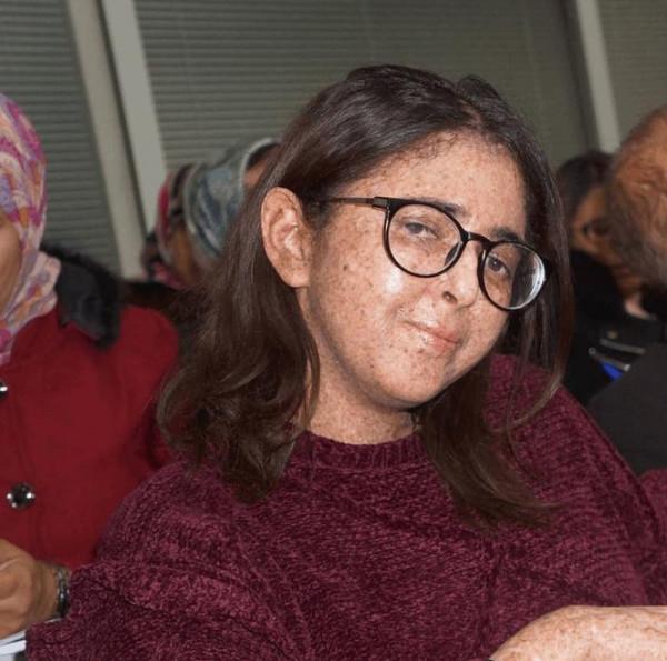 مرض نادر يمنع ابنة الـ 28 من الخروج نهاراً منذ 20 عاماً