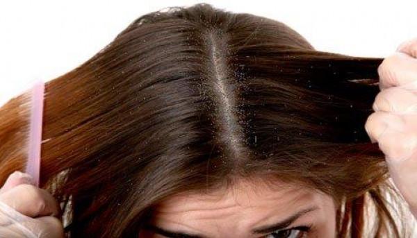 تجّنبي هذه الأطعمة لحماية شعرك من القشرة