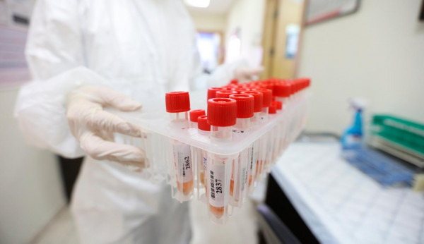 الصحة: تسجيل 457 إصابة جديدة بفيروس (كورونا) و540 حالة تعافٍ خلال 24 ساعة