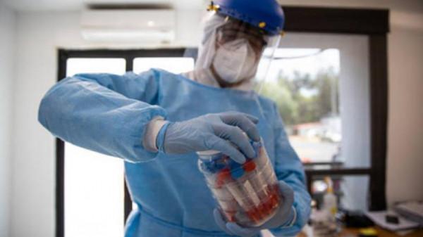 الصحة: تسجيل حالتي وفاة و696 إصابة جديدة بفيروس (كورونا)