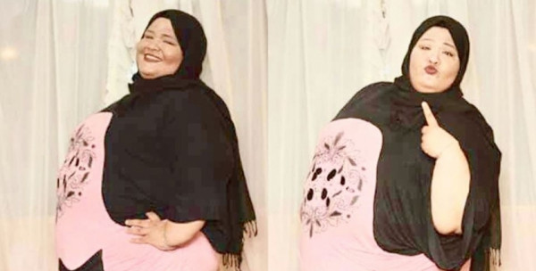 """تخطت 220 كيلو..""""إسراء"""" تنجو من السمنة بتبرع جراح: نفسي أبقى زي البنات"""