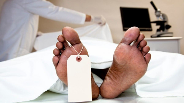 طالب طب نيجيري يتفاجأ بجثة صديقه في محاضرة للتشريح.. بالتفاصيل