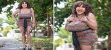 بالصور: معاناة ضحية عملية تحول جنسي