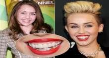 بالصور: اكسسوارات الأسنان الهوليوودية موضة تعتمدها النجمات