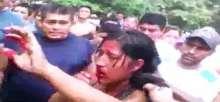 صور مروعة  .. هتكوا جسدها ضرباً وركلاً ثم صبوا البنزين وحرقوها