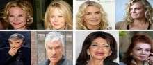 بالصور.. 8 مشاهير شوهتهم عمليات التجميل