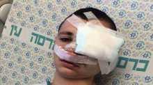 استئصال عين فتي مقدسي بعد إصابته بعيار مطاطي