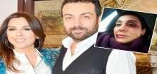 النجم التركي الشهير بـ الأسمر معرض للسجن بسبب ضربه حبيبته