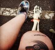 فتاة تعرض عظام ساقها المبتورة على إنستغرام